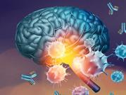 About Neuropsychiatric disorder